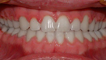 Closeup of aligned smile and closed gap between teeth