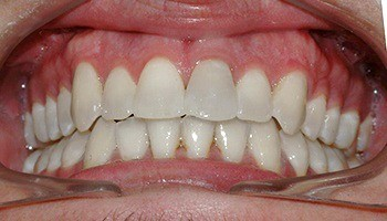 Closeup of aligned teeth and corrected bite