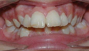 Closeup of crooked teeth and severe overbite
