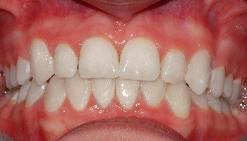 Closeup of smile with overbite correction