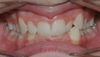 Closeup of severe overbite