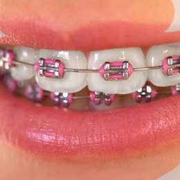 Smile with traditional braces