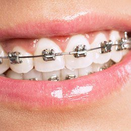 Smile with self litigating braces
